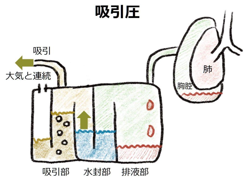 吸引 胸腔 圧 ドレーン