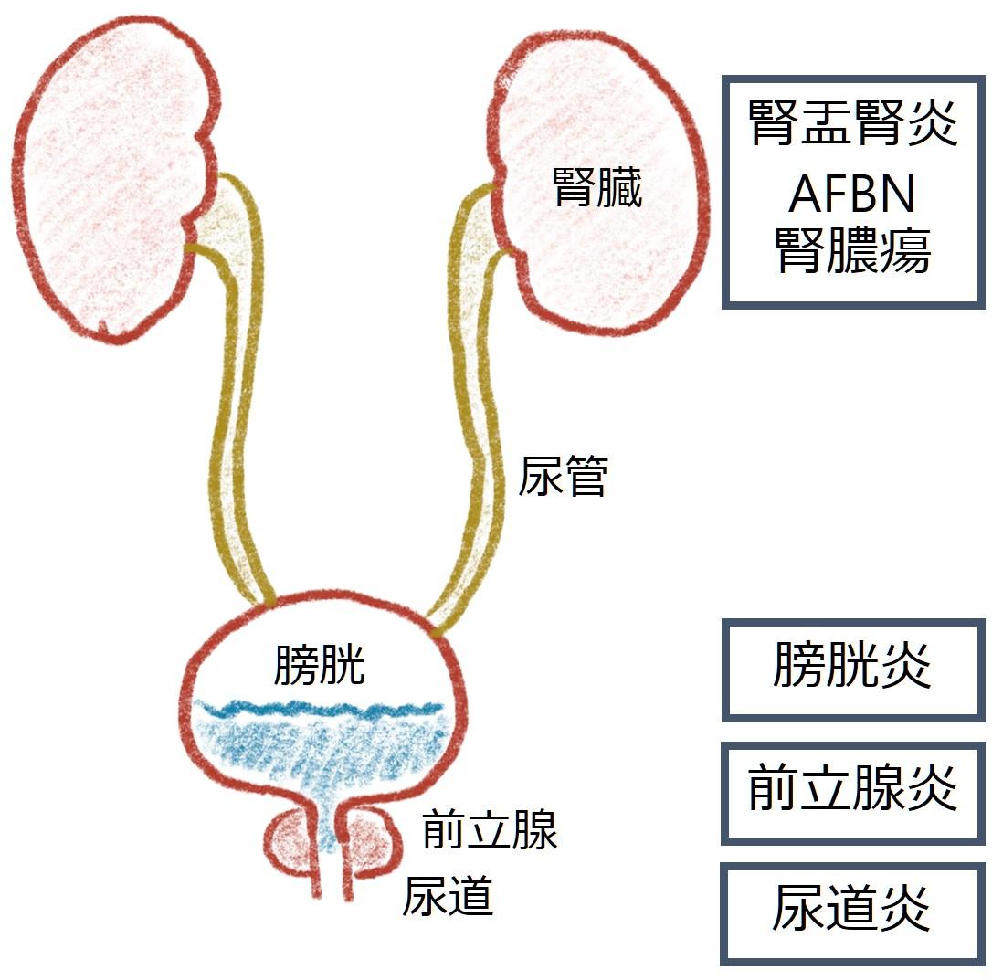 尿路感染症 UTI: urinary tract infection