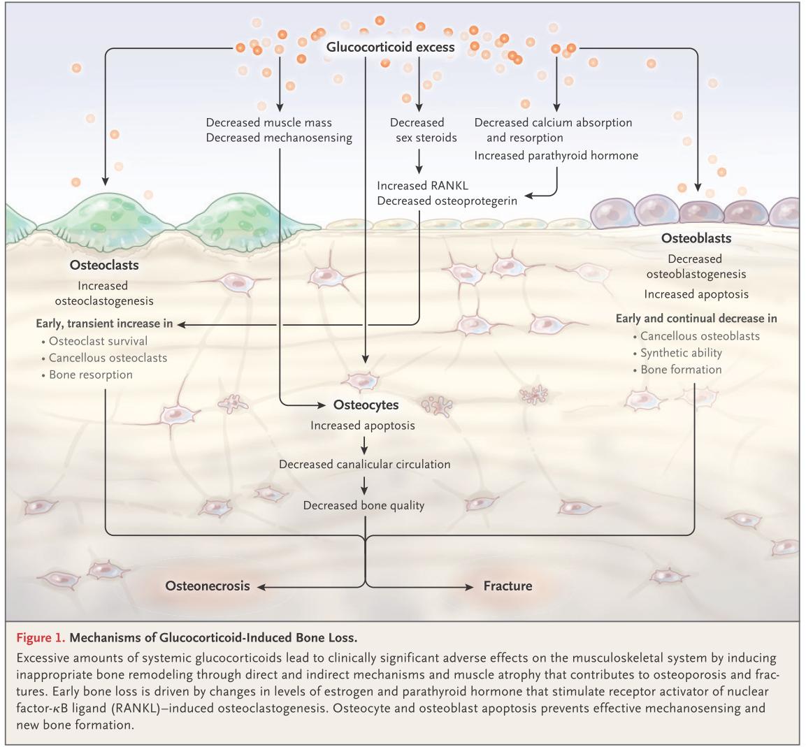 ステロイド骨粗鬆症 Glucocorticoid-induced osteoporosis