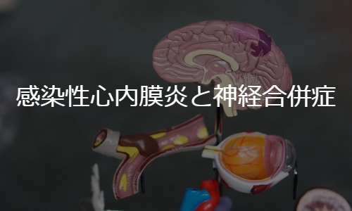 感染性心内膜炎と中枢神経合併症