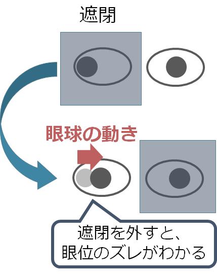 眼位の評価