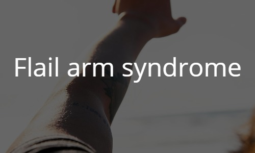 Flail arm syndrome
