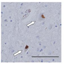 SBMA: spinal and bulbar muscular atrophy 球脊髄性筋萎縮症