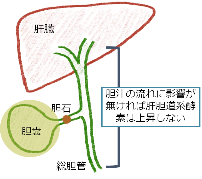 原発 性 硬化 性 胆管 炎