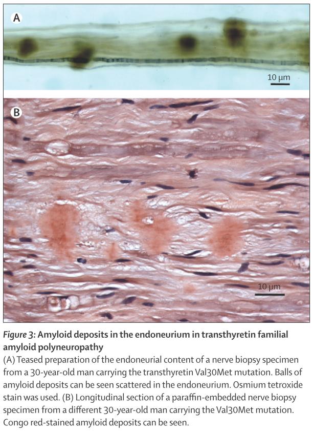 FAP: familial amyloid polyneuropathy 家族性アミロイドポリニューロパチー