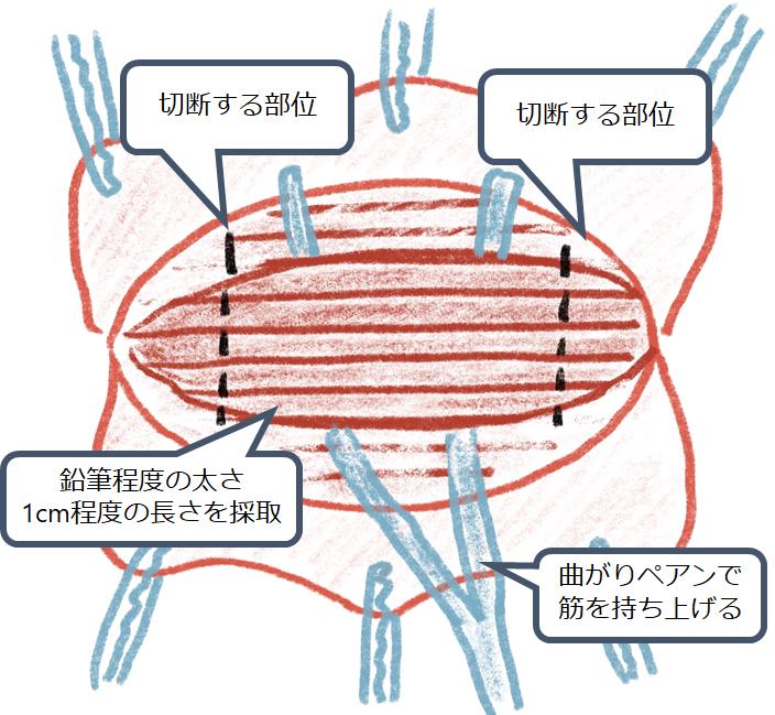 筋生検 検体採取