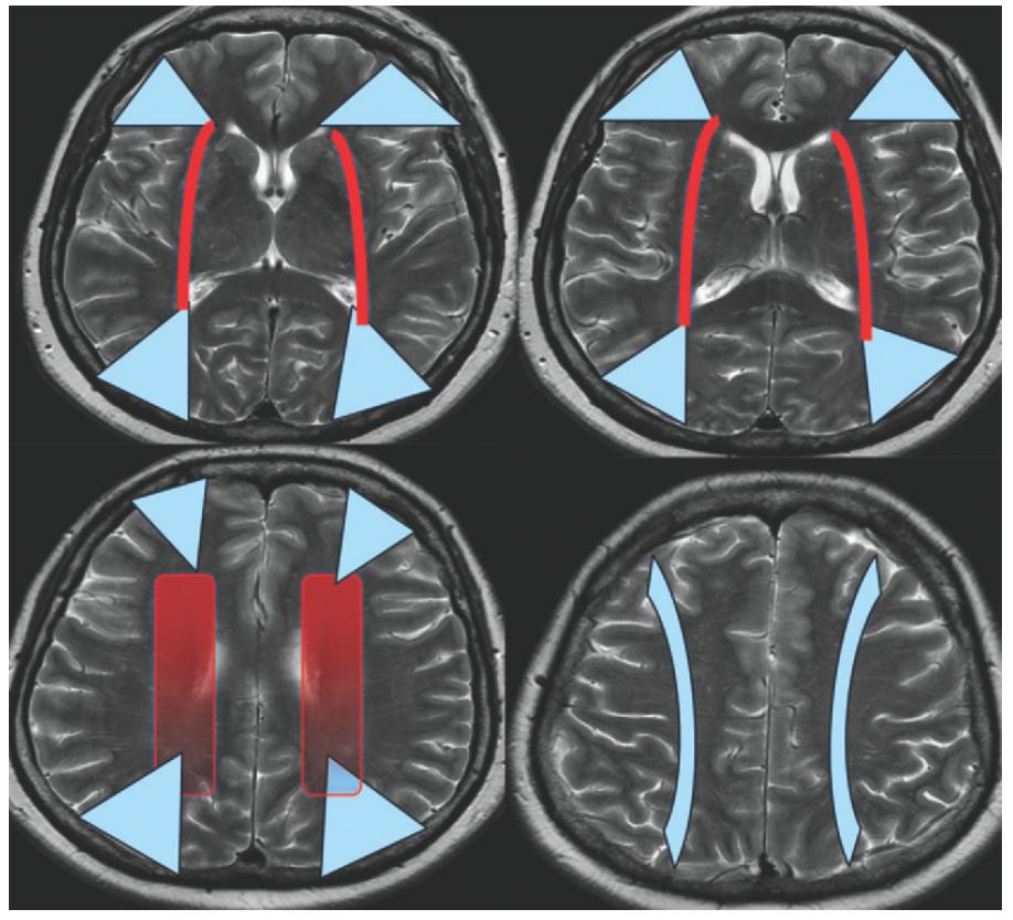分水嶺領域の脳梗塞 watershed infarction