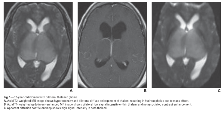 両側視床病変 bilateral thalamic lesions