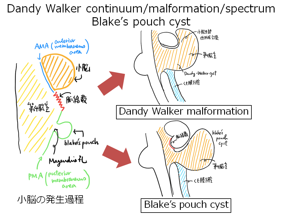 Dandy walker奇形 / Blake's pouch cyst