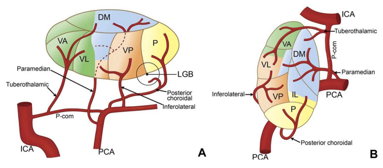 視床梗塞 thalamic infarction