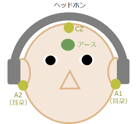 ABR: auditory brainstem response