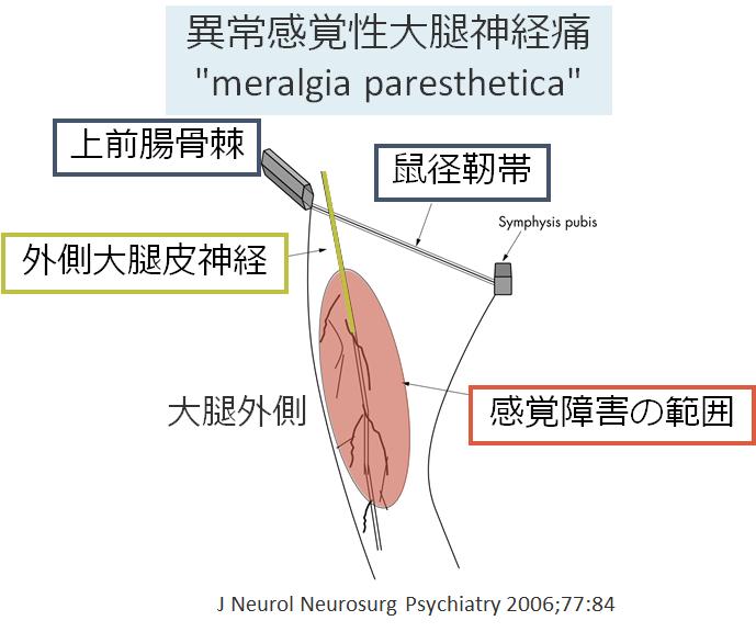 性 萎縮 症 筋 神経痛