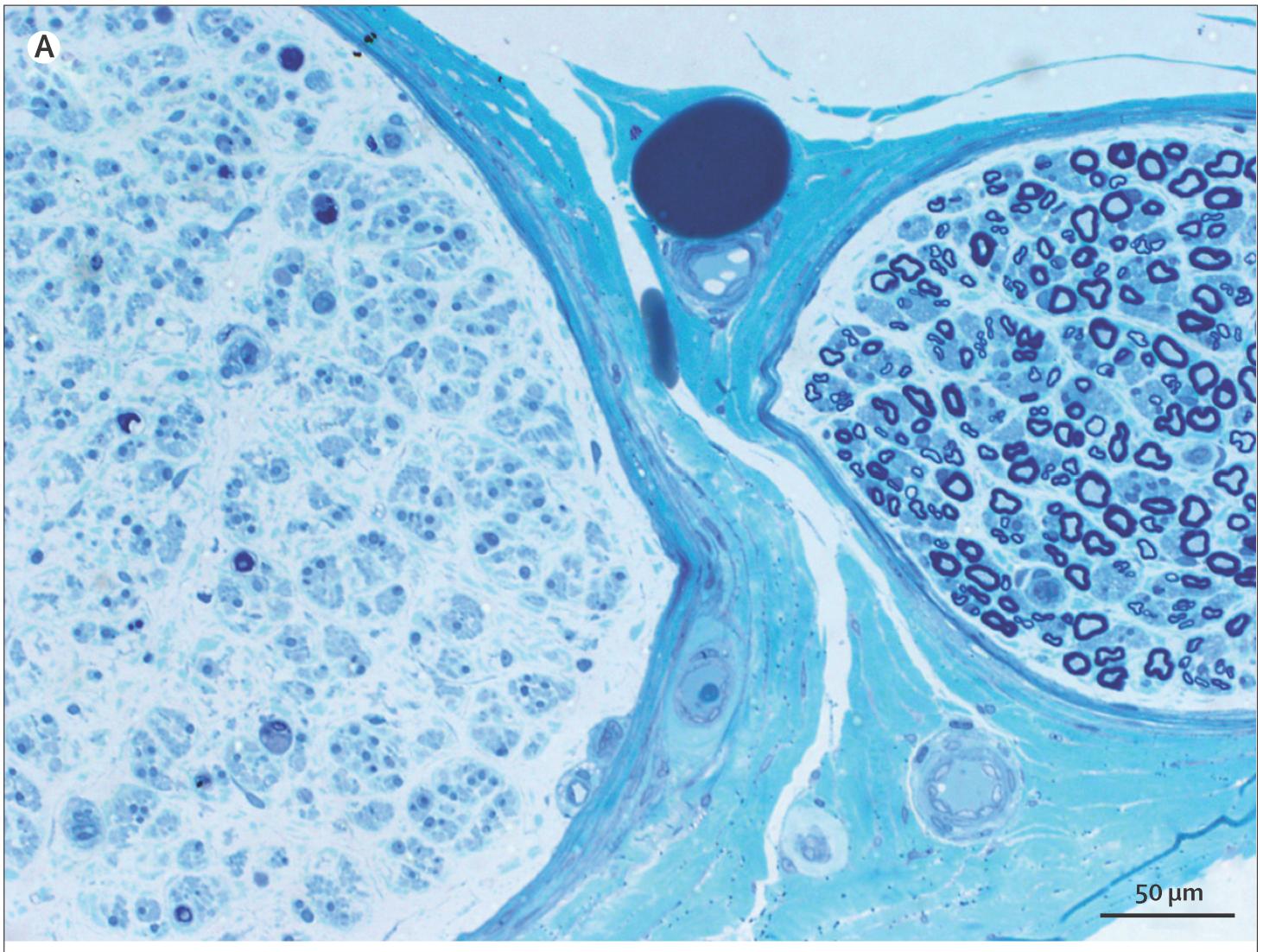 血管炎性ニューロパチー