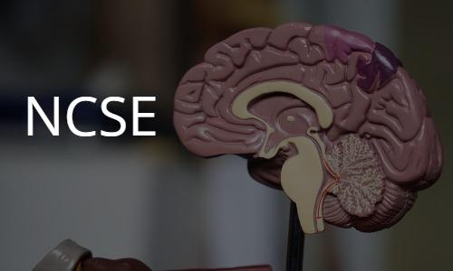NCSE: non-convulsive status epilepticus 非痙攣性てんかん重積