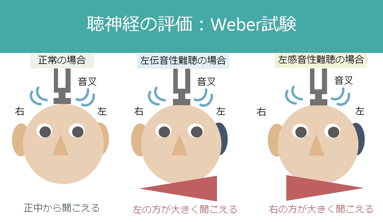 Weber試験・Rinne試験