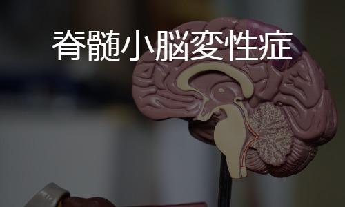 脊髄小脳変性症 SCD:spinocerebellar degeneration