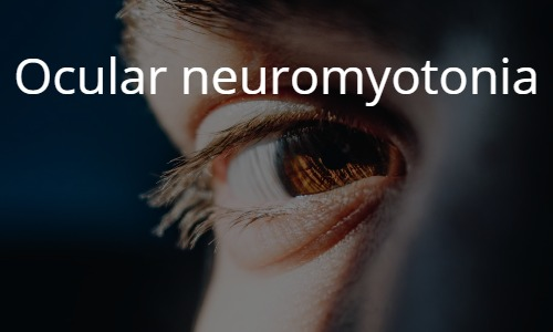 Ocular neuromyotonia: ONM