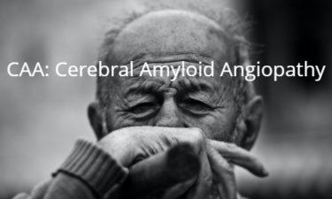 CAA: cerebral amyloid angiopathy 脳アミロイド血管症
