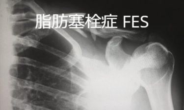 脂肪塞栓症 FES: fat embolism syndrome
