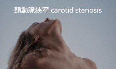 頚動脈狭窄 carotid stenosis